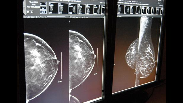 3-D mammography has arrived at the Greene County Medical Center, giving radiologists the ability to see more of a breast than ever. ANDREW McGINN | JEFFERSON HERALD