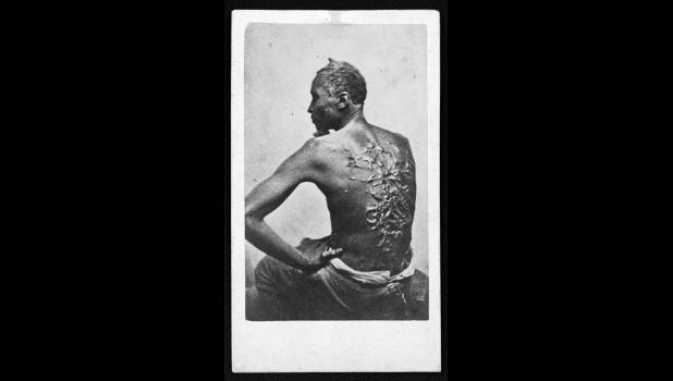 "One of the most damning photos of the time, escaped slave Gordon shows his scarred back at a medical examination in Louisiana, 1863. ""The negroes were the most spoiled domestics in the world,"" states information on the website of the Sons of Confederate Veterans."
